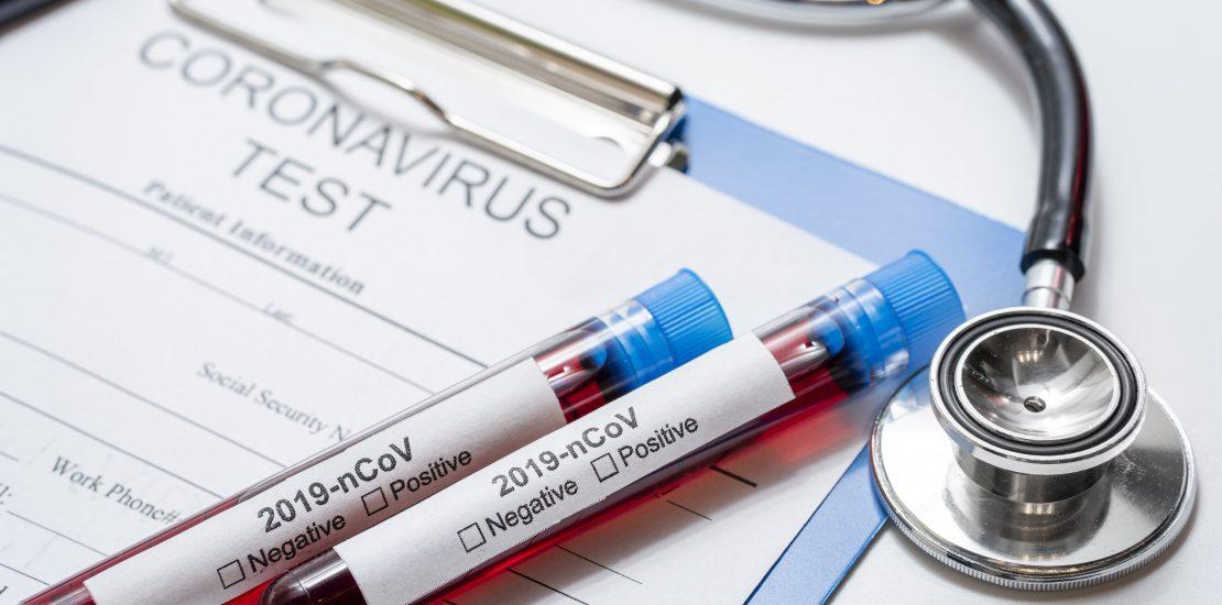 BLB - Medidas de las compañías aseguradoras frente al Coronavirus